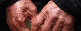Estudo explica como o melanoma se espalha para outros órgãos do corpo - Pablo Jacob / Agência O Globo  Leia mais sobre esse assunto em http://oglobo.globo.com/sociedade/saude/estudo-inedito-explica-como-melanoma-se-espalha-pelo-corpo-19980422#ixzz4IGCziaej  © 1996 - 2016. Todos direitos reservados a Infoglobo Comunicação e Participações S.A. Este material não pode ser publicado, transmitido por broadcast, reescrito ou redistribuído sem autorização.